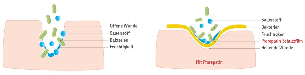 grafik_wunde